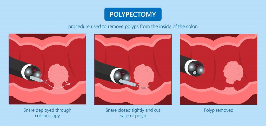 Polypectomy